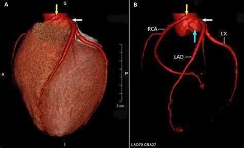 aborted sudden cardiac death aborted sudden cardiac death associated with an anomalous