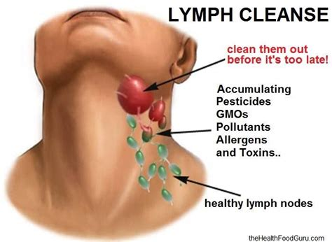 Detox Lymph Nodes Swollen by Best 25 Lymph Node Ideas On Lymph