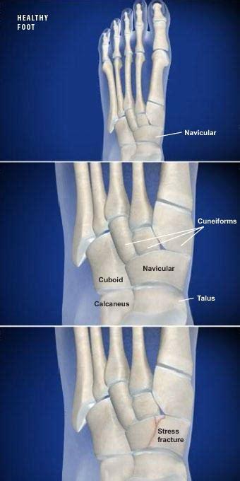 navicular stress fracture houston tx spring branch