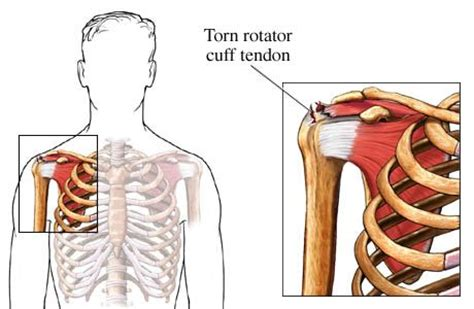 torn rotator cuff diagram torn rotator cuff tendon shoulder surgery recovery