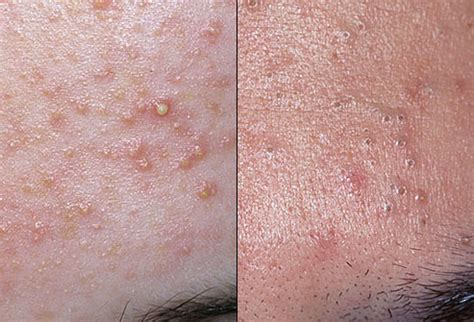skin problems picture of acne