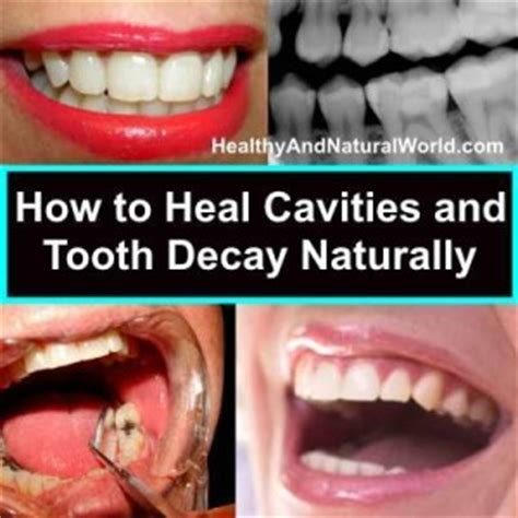 dental testimonials cure tooth decay whatshappeningphilippines how to heal cavities and tooth