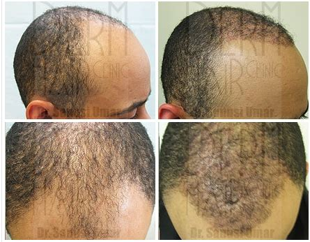 african american hair transplant african american patient hair restoration fue