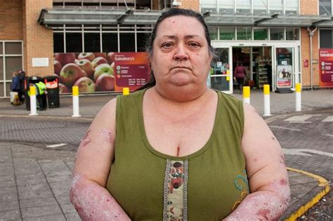 Psoriasis Survey For Money - woman with painful skin condition claims supermarket