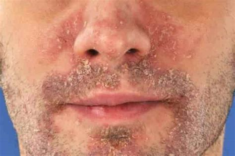 remedies for dry skin around mouth makeup and beauty dry patches on face flaky peeling red white pictures