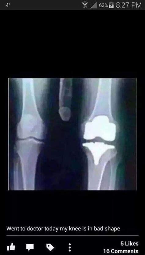 Xray Meme - bad knee xray 17 funny pics memes health pinterest