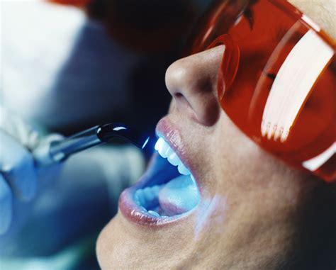 Biaya Pemutihan Gigi Bleaching tempat whitening gigi murah jakarta orange dental 174