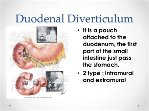 second section of small intestine duodenum and duodenal diverticulum