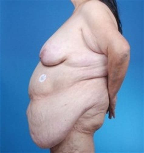 panniculectomy after c section abdominoplasty vs panniculectomy what is the difference