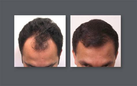 neograph timeline neograft hair transplant results with automated fue hair
