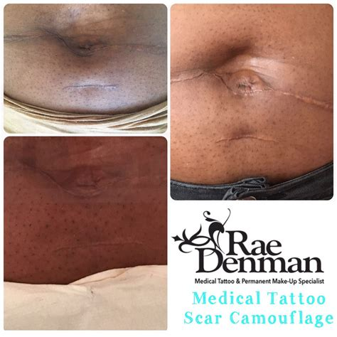 medical tattooing for scars denman tattooing semi permanent makeup