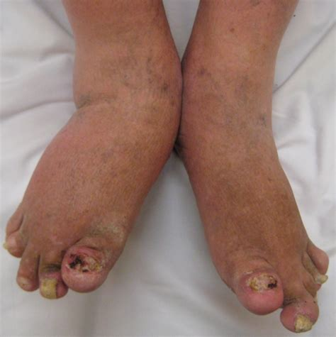 psoriatic arthritis photos and signs
