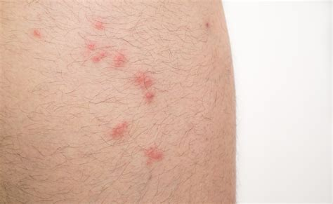 flea vs bed bug bites flea bites vs bed bug bites on humans