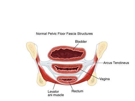 rectocele rectocele and hemorrhoids