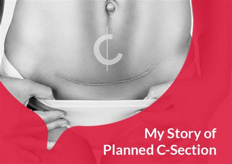 Why I Chose C Section For My Child S Birth