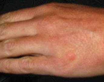 triangle pattern bug bites bed bug bite marks body pictures treatment free brochure