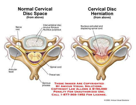 herniated disc diagram cervical disc herniation