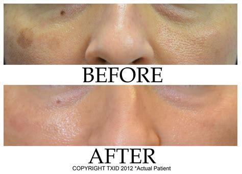 treatment of pigmented dark spots around eyes