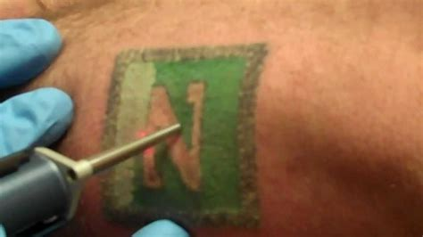 green tattoo removal laser removal black green ink