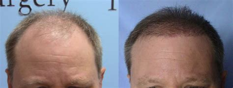 hair transplant month by month pictures 5000 graft fue hair transplant update 6 months
