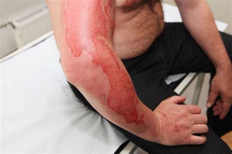 burn victim meaning peripheral nerve surgery for burn survivors improving