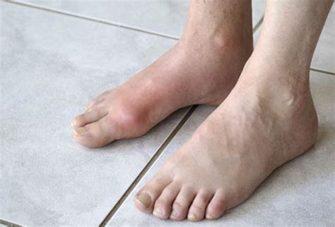 top to toe foot problems slideshow what your say about your health