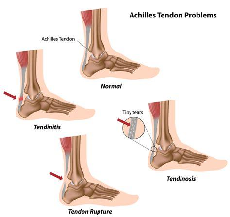tendinite caviglia interna achilles tendon tear kansas city bone joint clinic