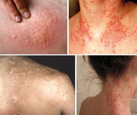 Obat Tradisional Kulit Gatal obat alergi kulit