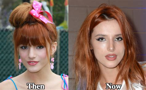 bella thorne before and after surgery bella thorne plastic surgery before and after photos