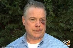 defense attorney says he was beaten black and blue by d a