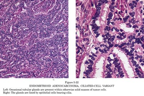 Clear Cell Endometrial Cancer Pathology Outlines by Pathology Outlines Endometrioid Carcinoma