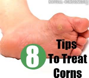 home remedies for corns corn treatment get rid of corns corn removal home