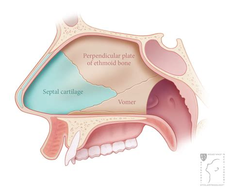 nose diagram septoplasty stanford health care