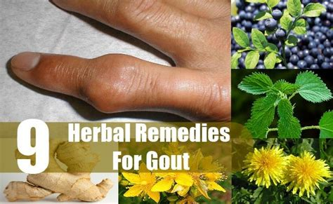 133 best gout lifestyle images on gout