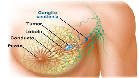 imagenes gratis cancer de mama semi automated delineation of breast cancer tumors