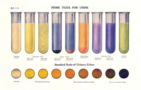 colored urine vidasana our health and the color of urine