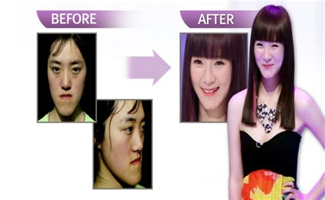 makeover shows this south korean plastic surgery makeover show is