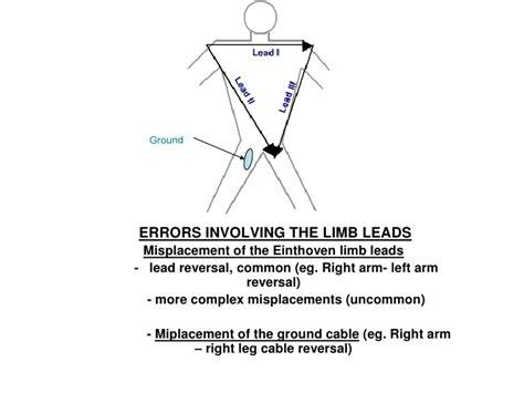 Limb Lead Reversal reversal limb leads