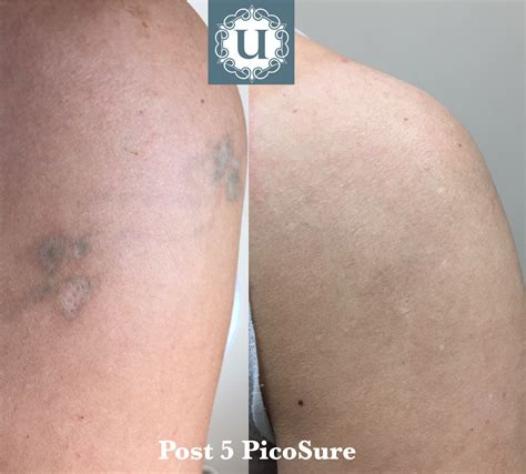 green tattoo removal green ink removal picosure is effective for