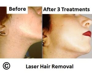 canada hair removal clinic canada hair removal clinic photo gallery laser hair