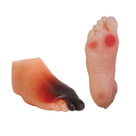 diabetic foot model set health education products