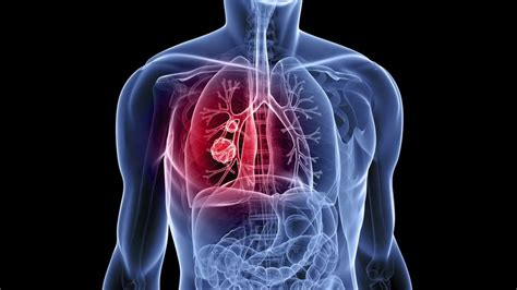 blogger lung 10 000 data scientists take on lung cancer in data science