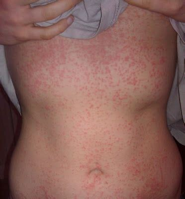 reaction to steroids allergic reaction rash to washing powder i eczema topical steroid withdrawal