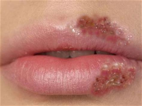 herpes zoster interno sintomi cura naturale herpes zoster herpes labialis herpes