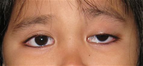 Mcgowans Droopy Eye Problem by Droopy Eyelid In Malaysia By Prof Dr Chua Chung Nen