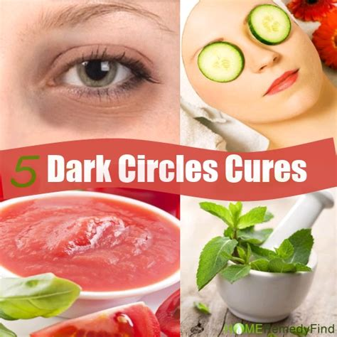 5 amazing home remedies to cure circles diy find