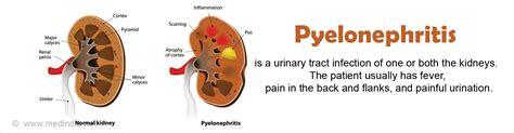 Pyelonephritis   Causes, Symptoms, Diagnosis, Treatment
