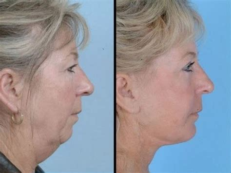 Hair Styles To Reduce Sagging Neck Look | sagging jowls trick 1 face exercises to lose face fat