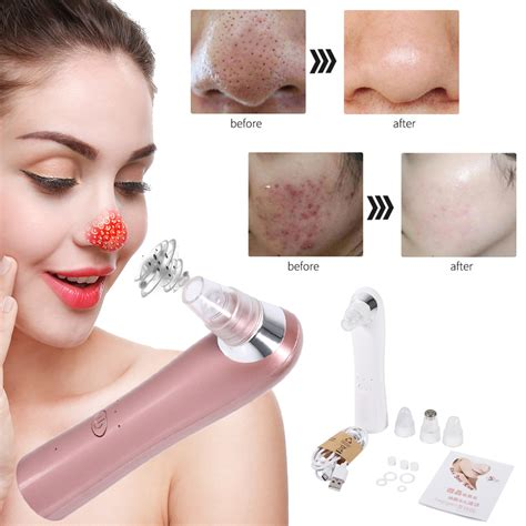 Acne Care Cleanser electric skin care pore blackhead removal cleaner