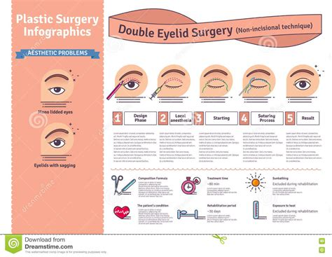 surgery information understanding surgery surgery a to z vector illustrated set with double eyelid surgery non